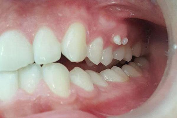 Dentes-supranumerários