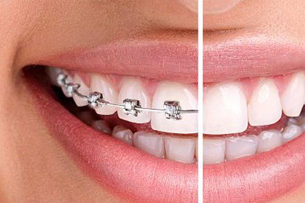 O que é a Ortodontia?